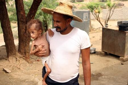 Ali Muhammad, father of malnourished Muath Ali Muhammad, holds him near their home in Aslam district of the northwestern province of Hajja