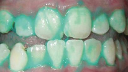 Infartos e ictus: Lavarse los dientes con esta pasta podría evitarlo