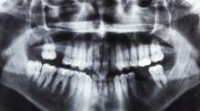Opéré des dents de sagesse, il en meurt deux semaines plus tard