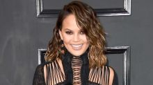 Chrissy Teigen Says Everything About Her Face Is Fake Except Her Cheeks