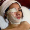 Jilted Lover Suffers Burns After Revenge Acid Attack Goes Badly Wrong