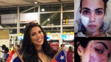 A esta concursante de Miss Universo le desfiguraron el rostro con ácido