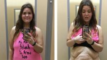 Woman Shares Honest Photos of 180-Pound Weight Loss