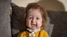 This 2-year-old is thought to be the only person in the world with very rare aging disease