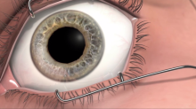 Eye implant is helping treat vision loss in diabetics