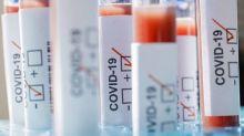 Diasorin: entro aprile test sierologico per riconoscere anticorpi