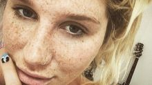 Kesha Shows Off Her Freckles in Gorgeous Selfie