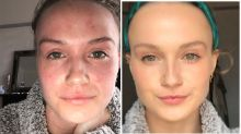 $18.50 Aussie 'miracle product' clears woman's eczema in weeks
