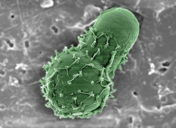 Learning from Earth's Smallest Ecosystems (Kavli Hangout)