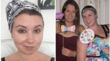 Woman with alopecia turns hair loss into a fashion statement