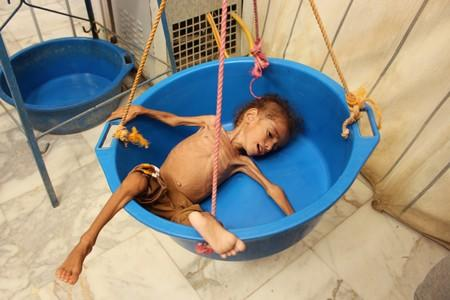 Malnourished Muath Ali Muhammad lies in a weighing scale at a health center in Aslam district of the northwestern province of Hajja