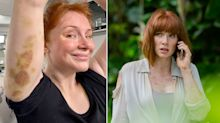Bryce Dallas Howard shares bruises she's got filming 'Jurassic World: Dominion'