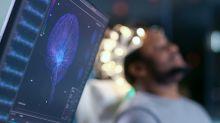 Las incógnitas sobre el cerebro humano que quedaron pendientes para la próxima década
