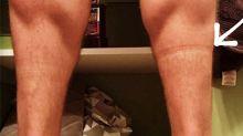 Los problemas de salud que hay detrás de las marcas de los calcetines