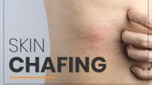 Chafing: Causes, Symptoms, Complications, Treatment & Prevention