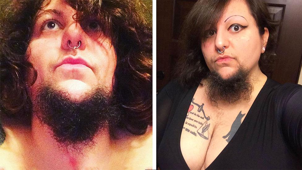Woman with a beard reveals she considered gender