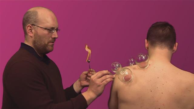 How To Do Cupping Therapy