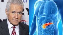 'This is how we're going to change outcomes': Trebek's chemotherapy success gives hope to pancreatic cancer patients