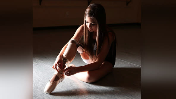 Brave Ballerina Young Amputee Who Beat Cancer Inspires Millions Around The World