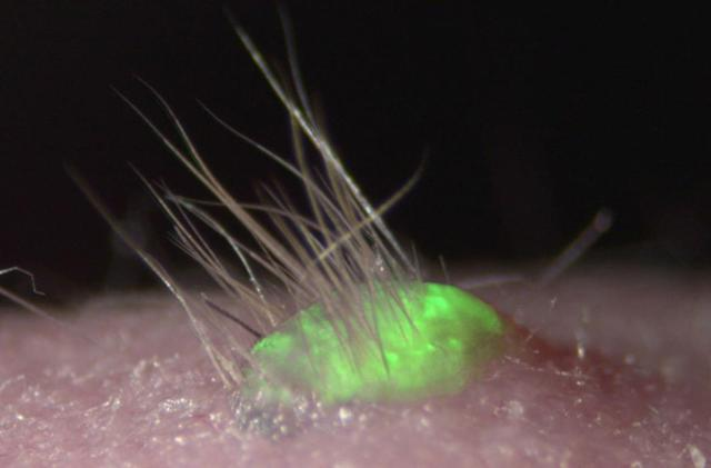 Artificial skin grows hair and sweat glands