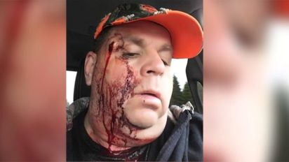 N.B. man survives being shot in face by misfiring rifle