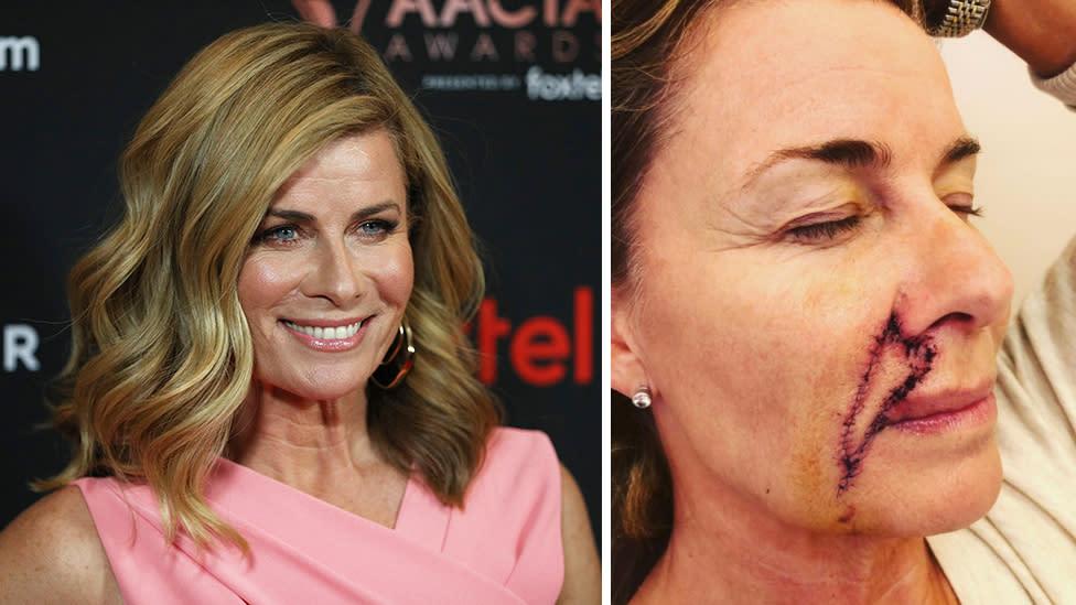 Aussie Star Deborah Hutton Opens Up About Cancer Scare