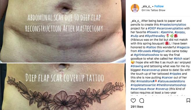 Tatouage et reconstruction : peut-on tatouer sur une cicatrice ?