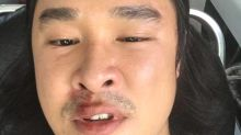 Actor Julian Hee hurt in alleged road rage incident