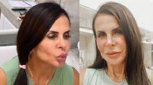 """Gretchen mostra resultado de harmonização facial: """"Novo visual para o casamento"""""""