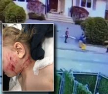 Toddler Hospitalized After Being Attacked by Dog While Playing Outside: 'He's Very Shaken'