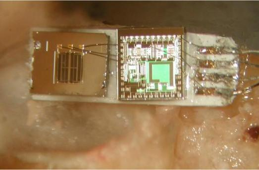 Accelerometer mic could change the way we look at cochlear implants