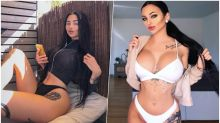 Woman Spends Over Rs 3 Million on Plastic Surgery After Being Called Ugly, Turns Into Raunchy Social Media Superstar