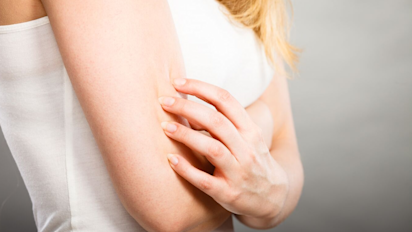 What are those little red bumps on your arms?