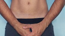Penile fracture: symptoms, causes and treatment