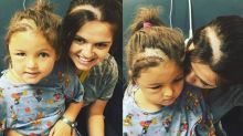 Mom shaves her head to match her daughter's surgery scar