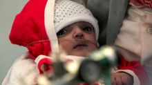 Yemeni children starve as food and fuel prices soar