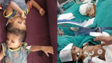 After 50 hours of surgery, conjoined twins joined at skull, successfully separated