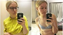 Eating disorder survivor bares her stomach rolls on Instagram as part of recovery