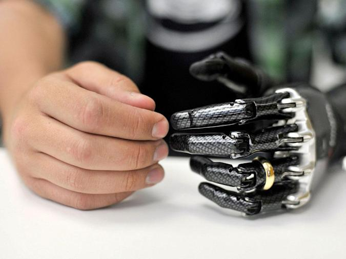 7 real-life cyborg implants