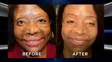 Woman Burned with Acid by Ex Returns