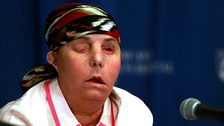 N.H. Woman Becomes First Person in U.S. to Receive a Second Face Transplant: 'A New Chapter in My Life'