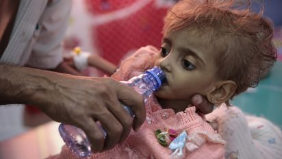 85,000 children may have died of hunger in Yemen