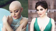Teen Who Had Cancer Goes to Prom With Full Head of Hair