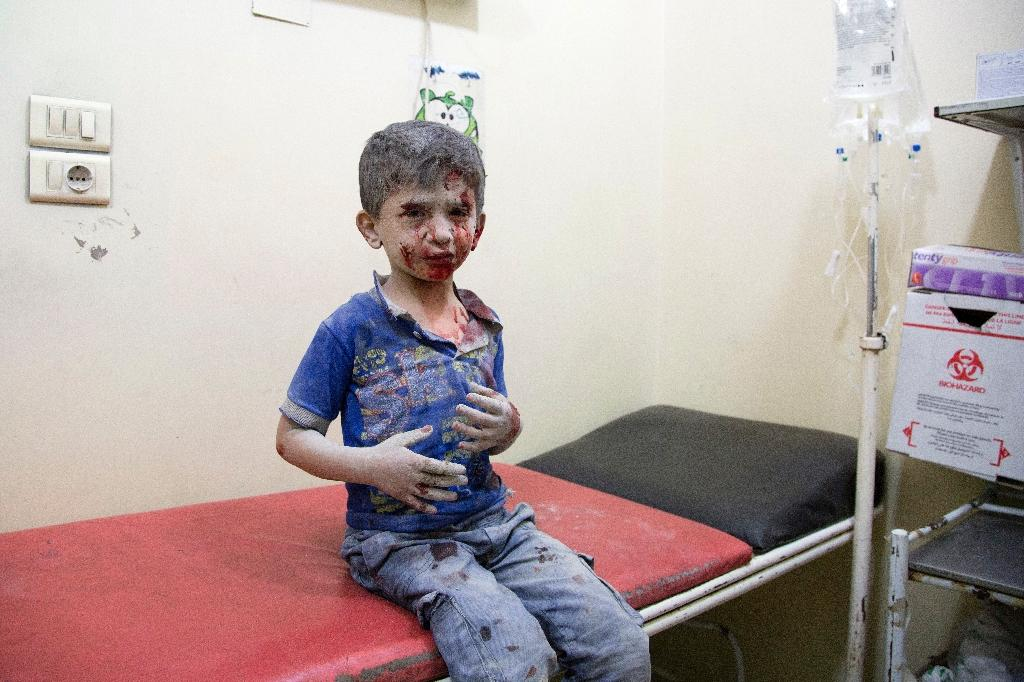 A Syrian boy awaits treatment at a make-shift hospital following air strikes on rebel-held eastern areas of Aleppo on September 24, 2016 (AFP Photo/Karam Al-Masri)