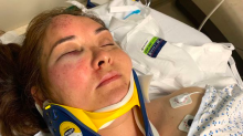 Mom knocked unconscious by 13-year-old in possible hate crime: 'Go back to Mexico!'