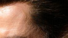 Man Gets 75% More Tinder Matches After Hair Transplant