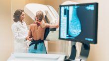 Google dice que la IA detecta el cáncer de mama mejor que los médicos