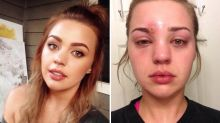 Woman's horrific skin infection proves washing make-up brushes regularly is a necessity