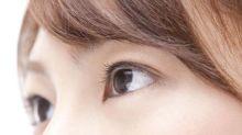 大受歡迎去眼袋方案 已為不少女生尋回最美雙眼