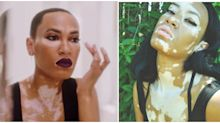 CoverGirl Just Chose It's First Brand Ambassador With Vitiligo